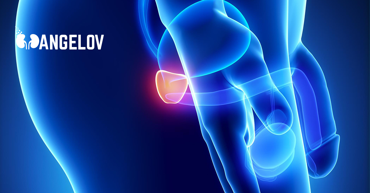 ultrazvuk-na-prostata.jpg